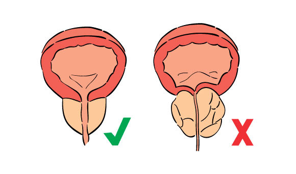 que es la prostata