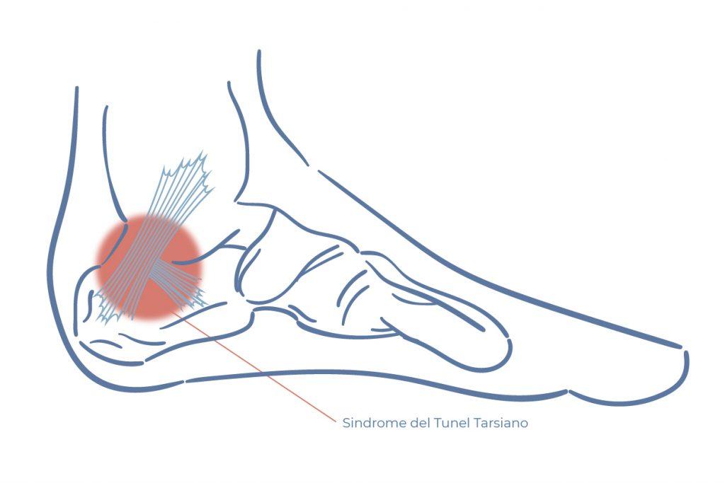 cirugia fimosis recuperacion